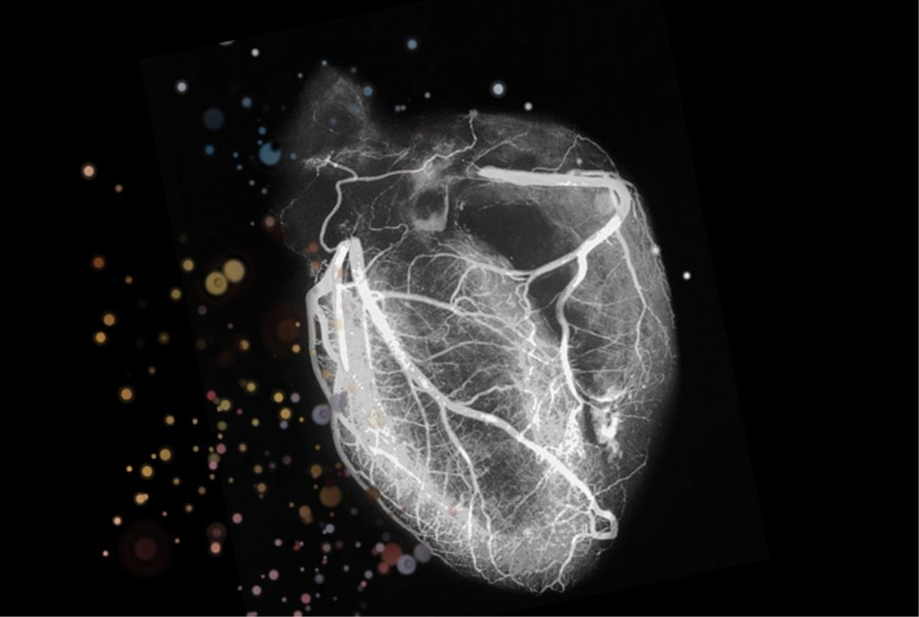Cardiology Wallpapers Top Free Cardiology Backgrounds Wallpaperaccess