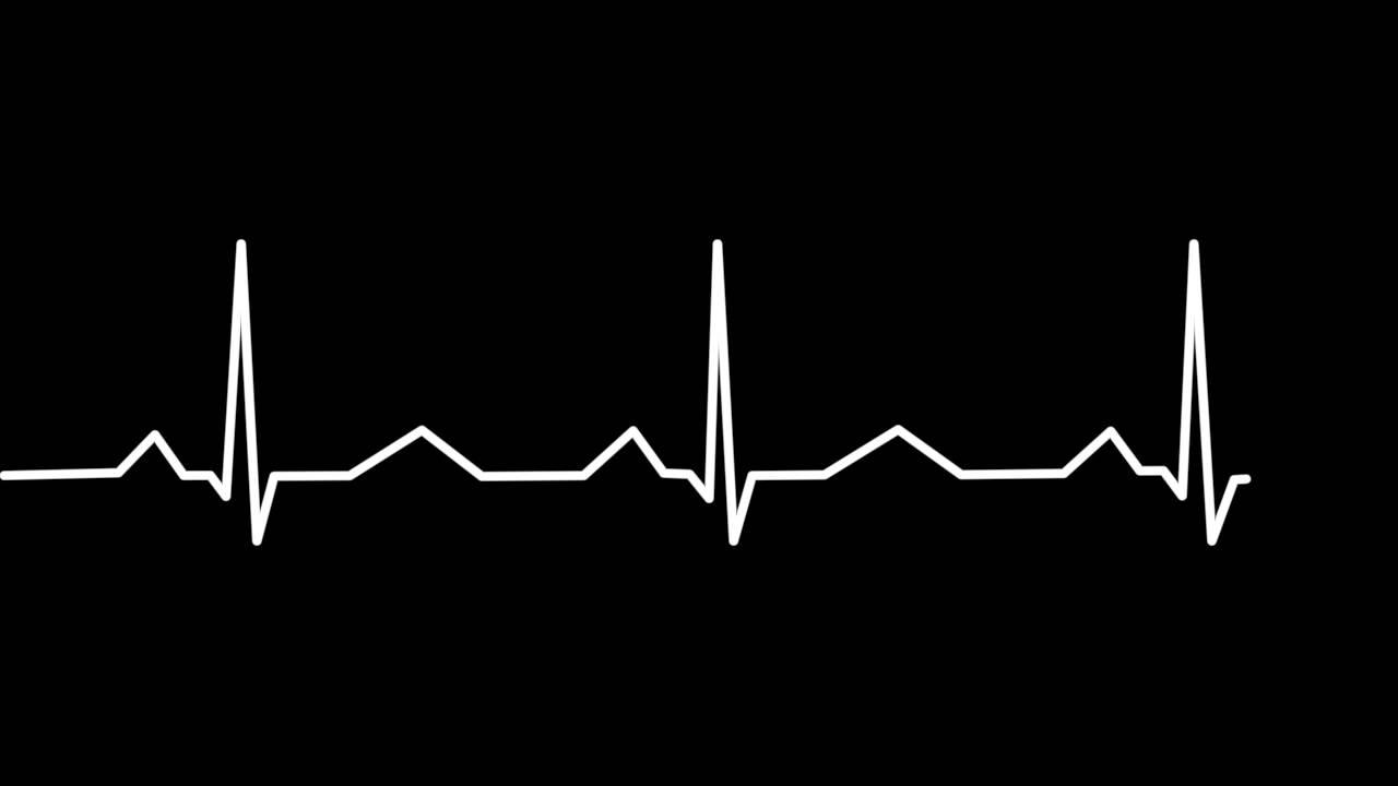 Черные картинки пульс